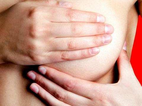 breast Weaning engorgement and