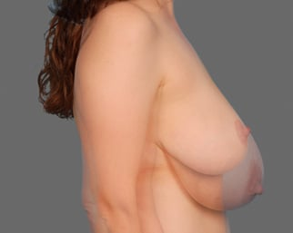 Share your Breasts after breastfeeding accept. The