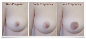 BFB Breast Pregnancy changes II