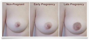 here are some of the breast changes you can expect during your